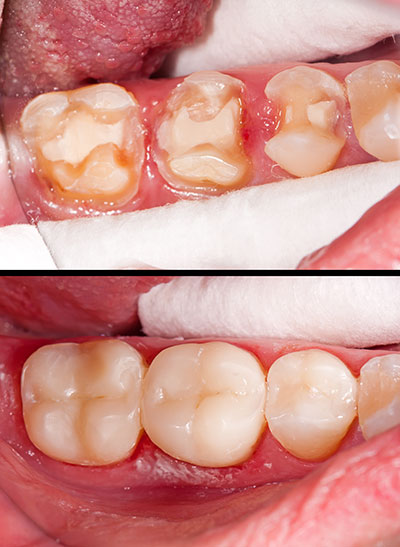 Ocean Township Composite Fillings