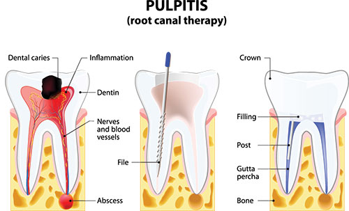 Root Canal in Ocean Township