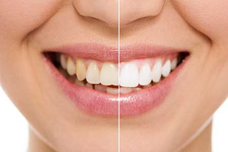 Cosmetic Dentistry in Ocean Township