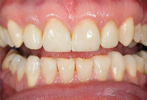 Teeth Whitening in Ocean Township