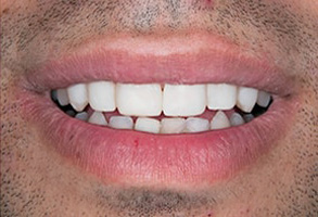 Veneers in Ocean Township