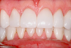Ocean Township Before and After Dental Fillings