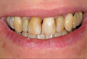 Ocean Township Dental Implants