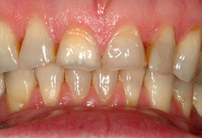 Before and After Dental Fillings in Ocean Township